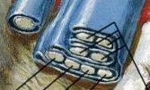 指の屈筋腱鞘 拡大