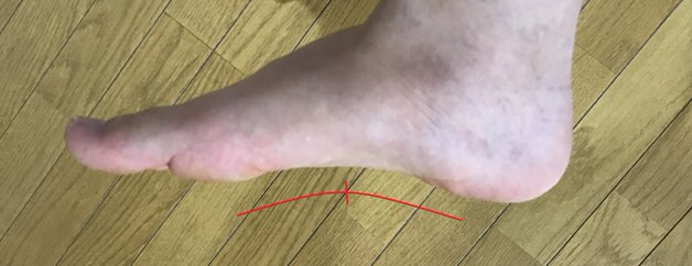 足底アーチ頂点の重心位置